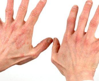 kak-vylechit-dermatit