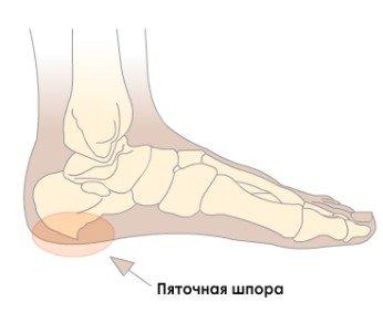 pyatochnaya-shpora-simptomy-lechenie (1)